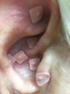 auriculoterapia colon irritable
